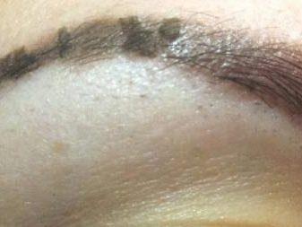 Корректировка татуажа бровей как долго заживает