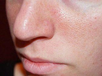 Косметика для жирной кожи с расширенными порами thumbnail
