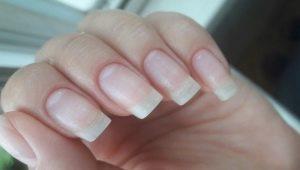Как восстановить ногти после шеллака?