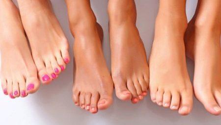 Почему ногти на ногах расслаиваются 46