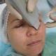Правила проведения ультразвуковой чистки лица