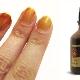 Йод для ногтей: от влияния до использования