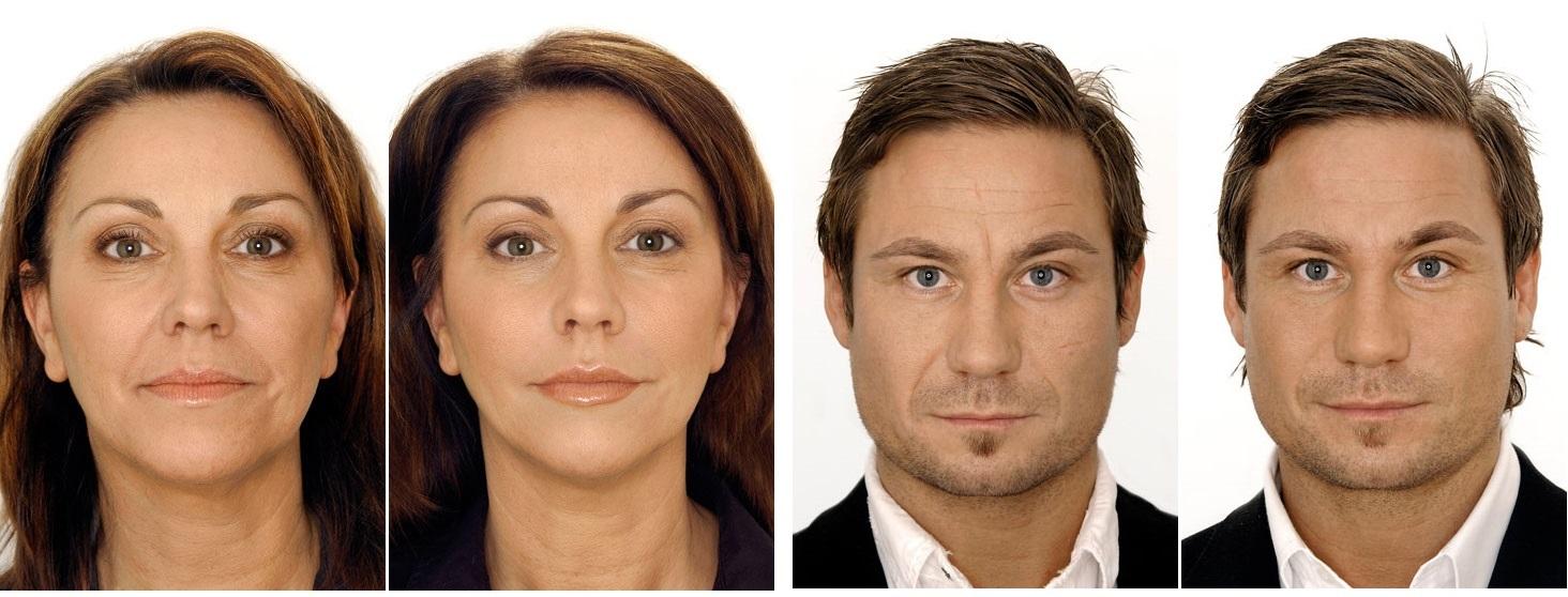 Газожидкостный пилинг лица: что это такое и какие результаты даёт эта процедура