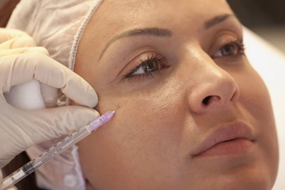 Мезотерапия лица до и после процедуры