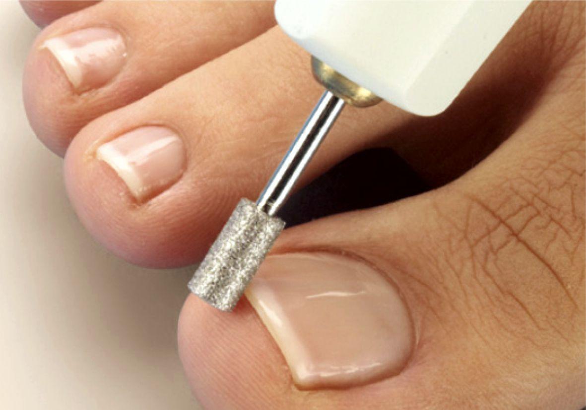 Как стричь ногти, чтобы они не врастали