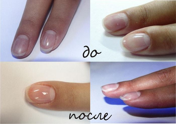 Преимущества наращивания и укрепления ногтей гелем