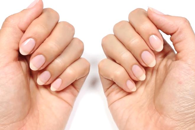 Слоятся ногти (30 фото): причины отслаивания на большом пальце ноги и на руках от кожи. Почему расслаиваются ногти у ребенка и у женщин?