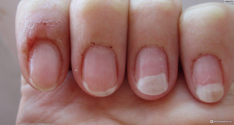 После гель-лака чешутся пальцы, зуд после маникюра: причины