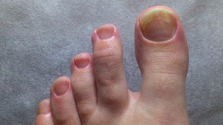 Почему ногти на ногах расслаиваются 51