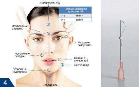 Подтяжка лица без операции нитями - Сайт о грыжах и их лечении | 301x480