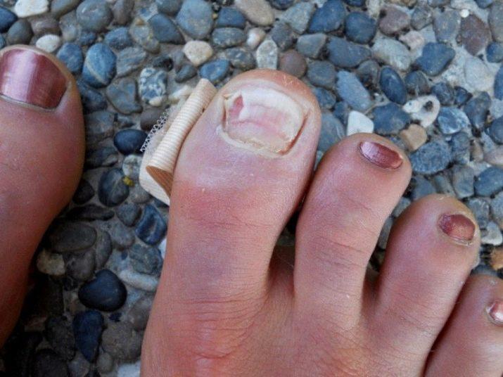 Почему ногти на ногах расслаиваются 47