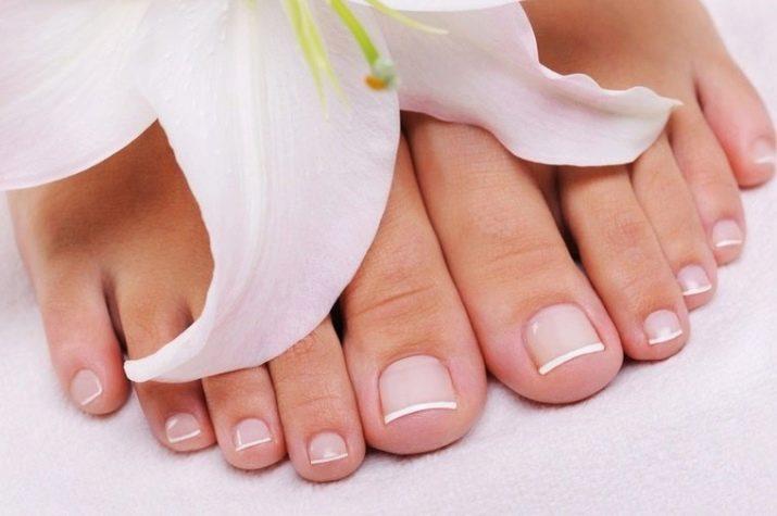 Почему ногти на ногах расслаиваются 48