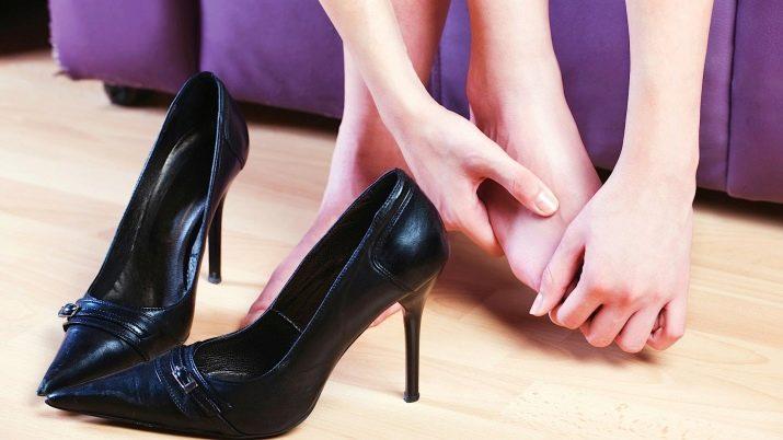 Почему ногти на ногах расслаиваются 49